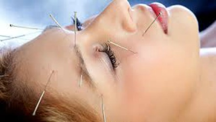 desoto acupuncture